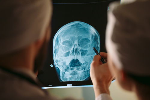 patient and doctor going over x-ray image of head