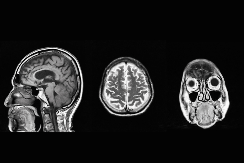 scan of brain with concussion