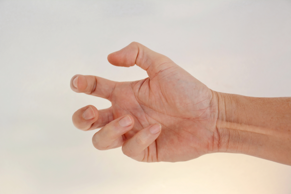 hand showing symptoms of focal dystonia