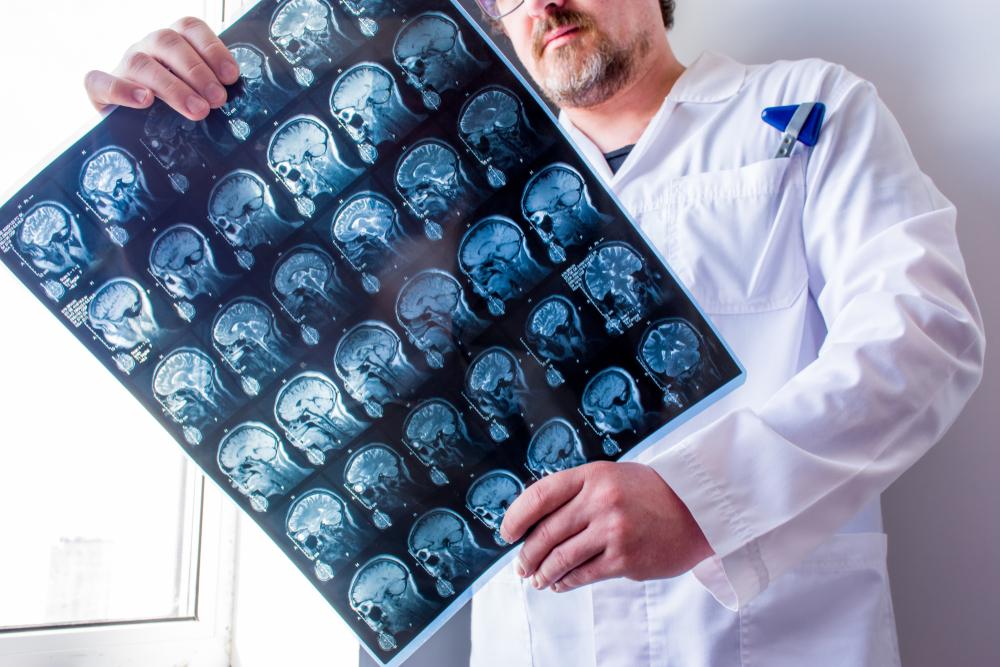 doctor checks mri results for concussion