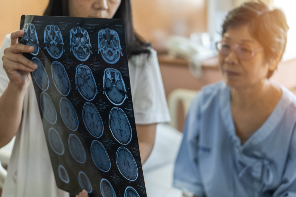 A doctor showing a brain scan to a woman with a movement disorder