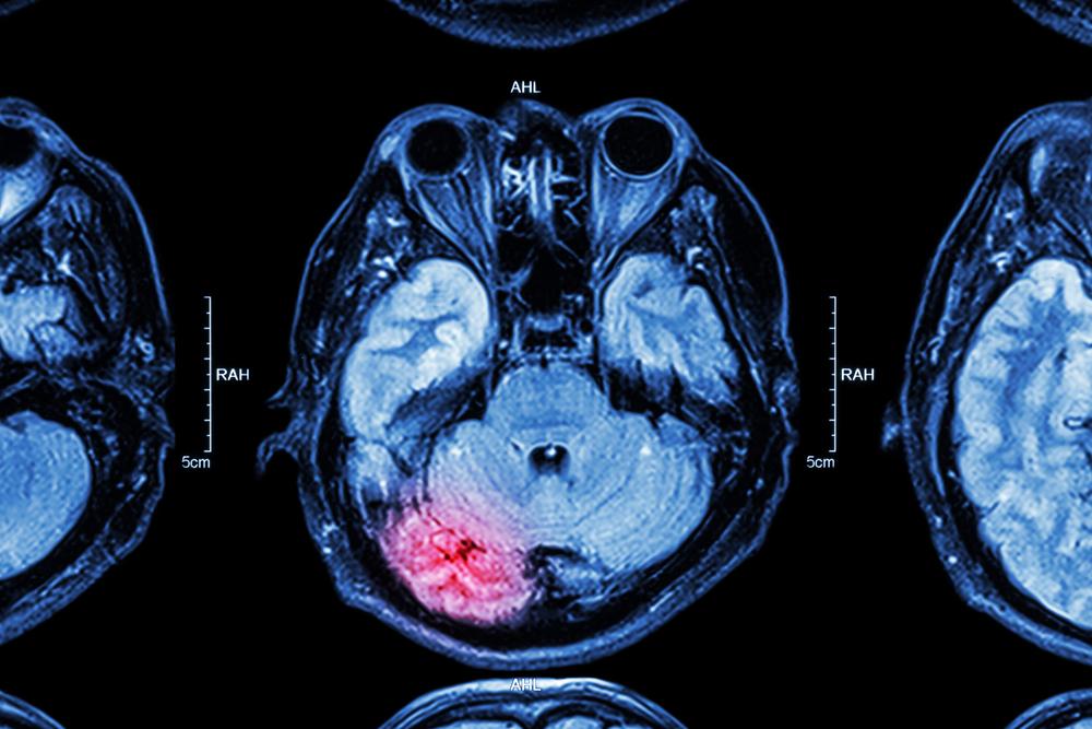 concussion diagnosis with MRI