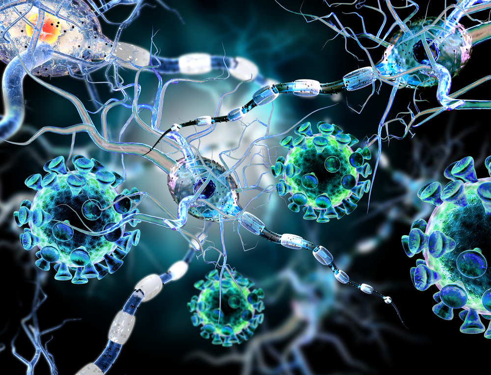 illustration shows movement disorder in brain cells