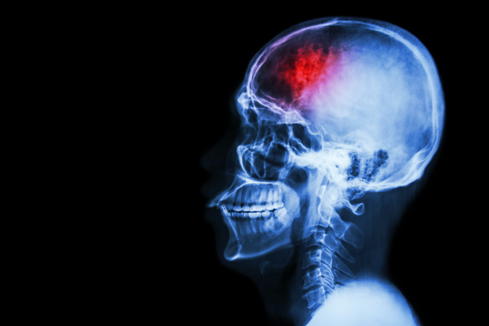 x-ray of person with traumatic brain injury